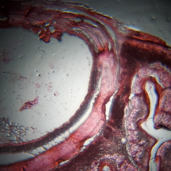 Trachea-Esophagus section stained during IND-19