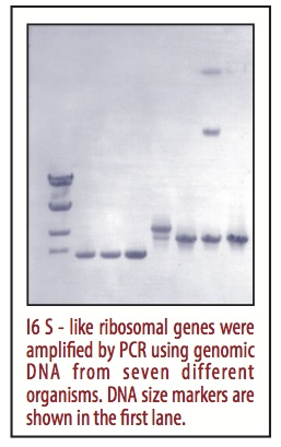IND-10: PCR Amplification of a Gene for Ribosomal RNA
